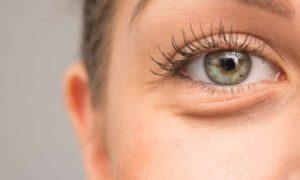 Причины появления мешков под глазами и лечение